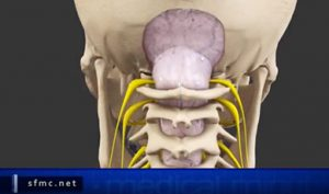 Medical Minute: Chiari Malformation with Dr. Yingling
